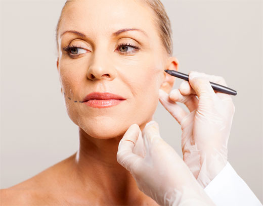 Tendencias actuales en lifting facial